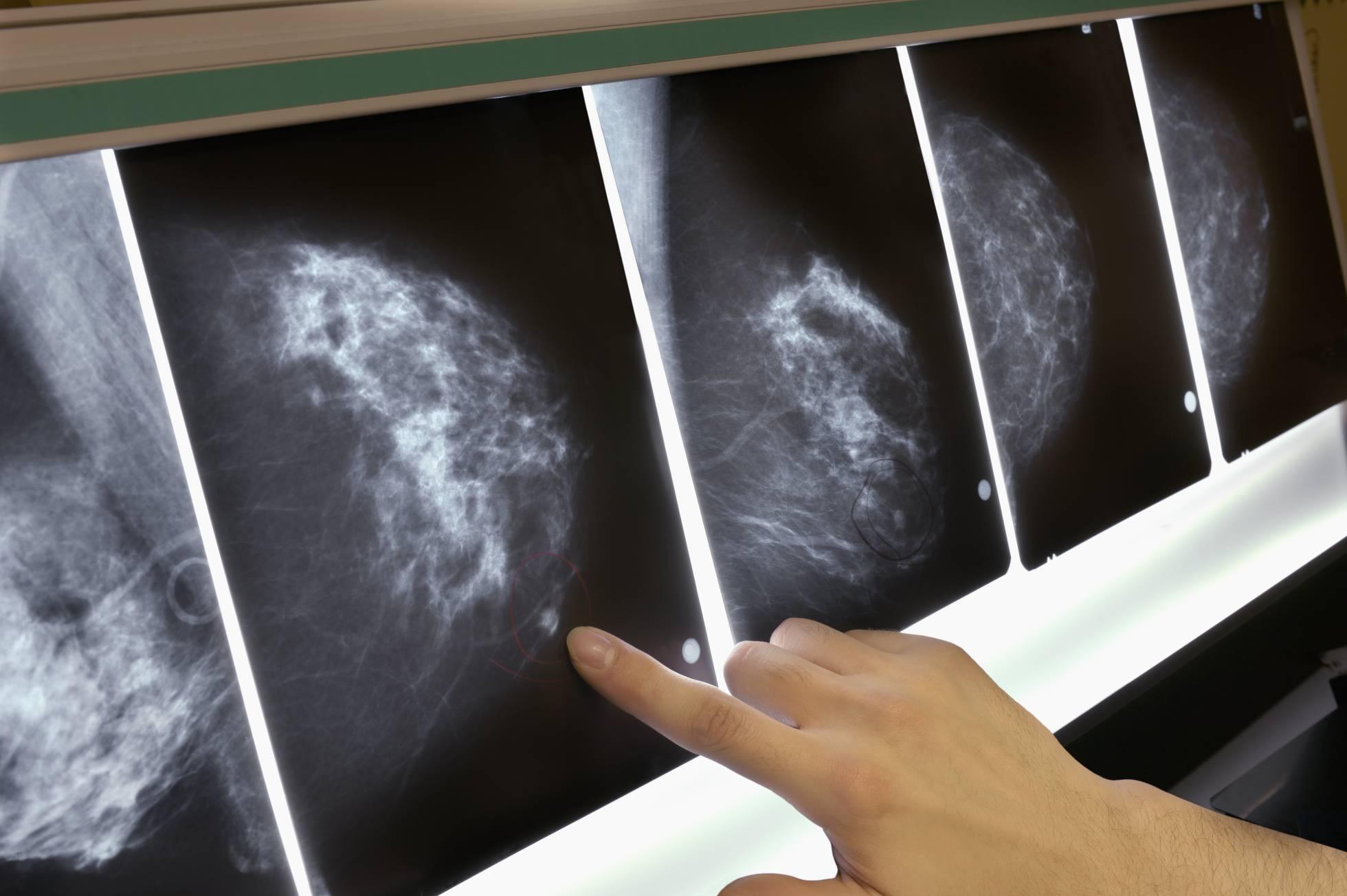 Un autotrasplante elimina el cáncer en una paciente con metástasis