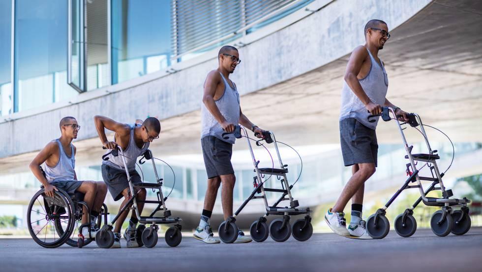 Tres parapléjicos vuelven a caminar gracias a un implante electrónico