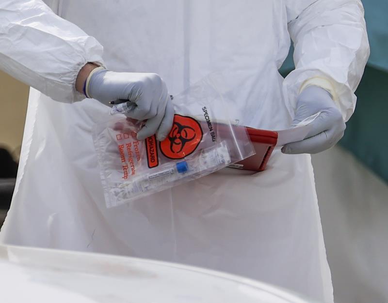 examen deteccion coronavirus